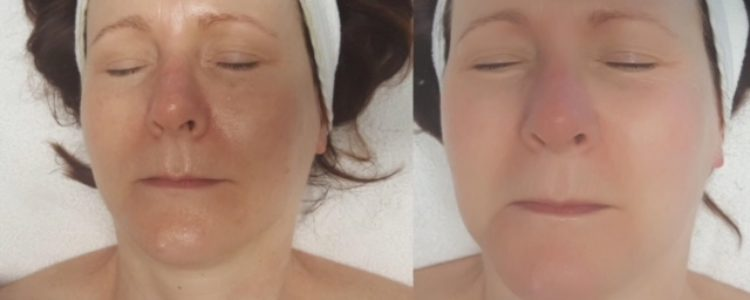 How do I treat pigmentation?